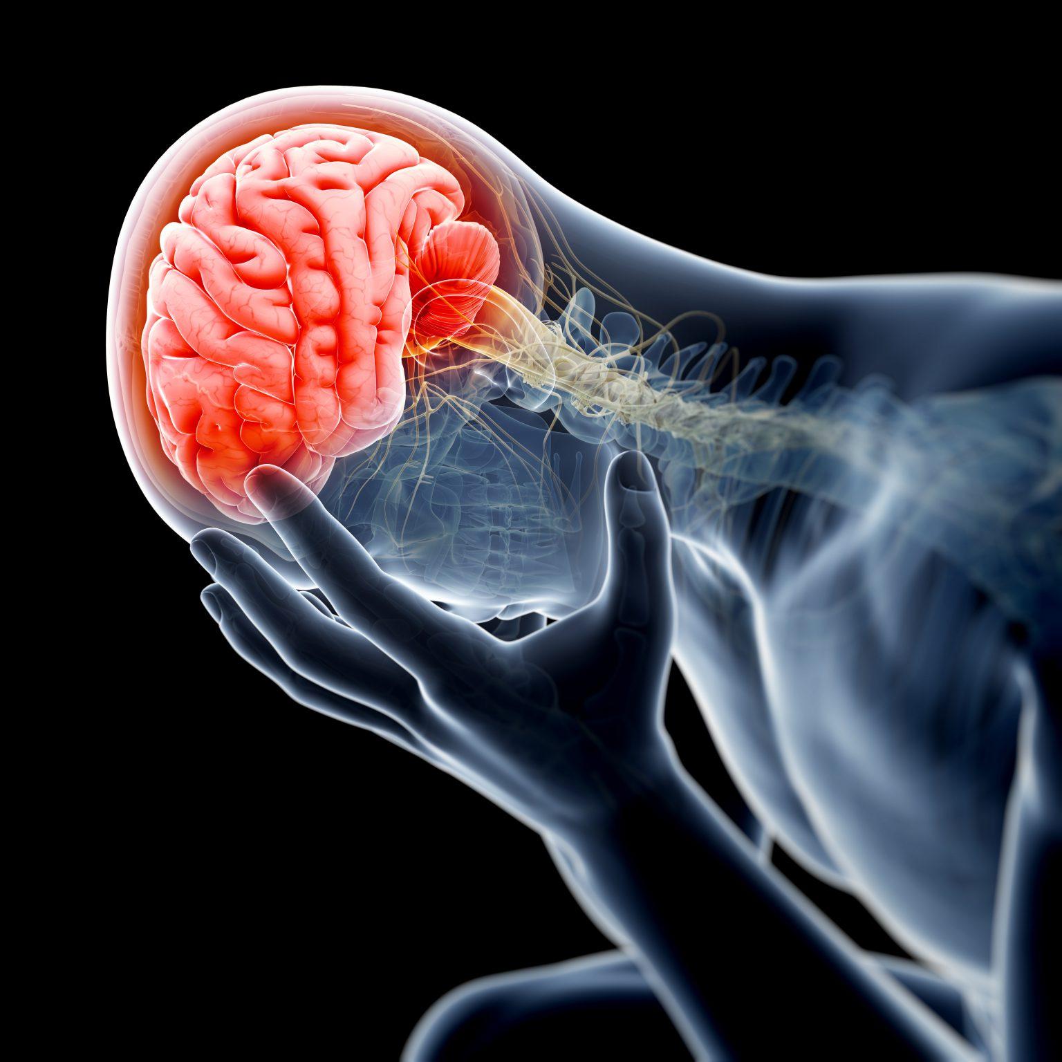Brain Health - concussion, TBI